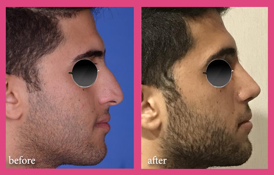 بینی استخوانی و کج