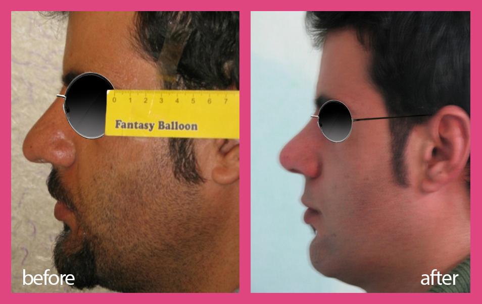 بینی شدیدا گوشتی