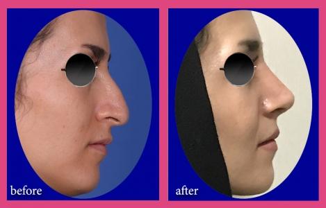 بینی استخوانی