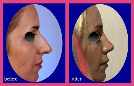 بینی استخوانی باجلوآمدگی بسیارشدید