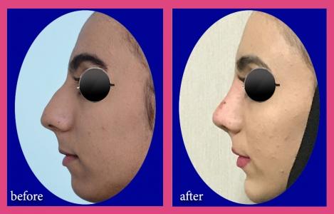 جراحی همزمان بینی و پروتز چانه
