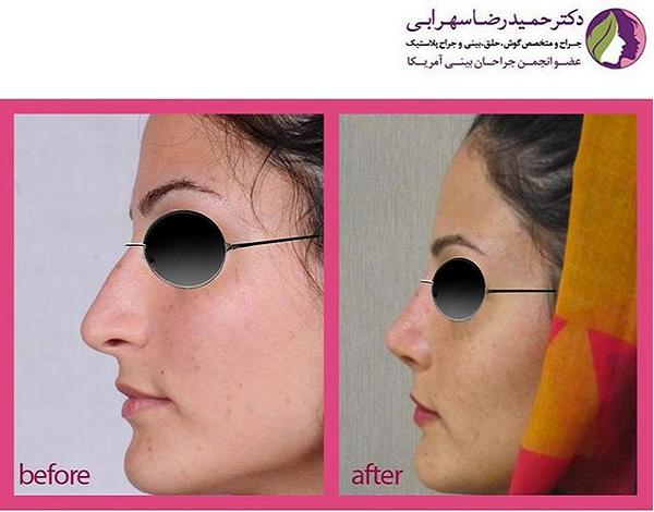 ظاهر جدید بعد از عمل جراحی بینی