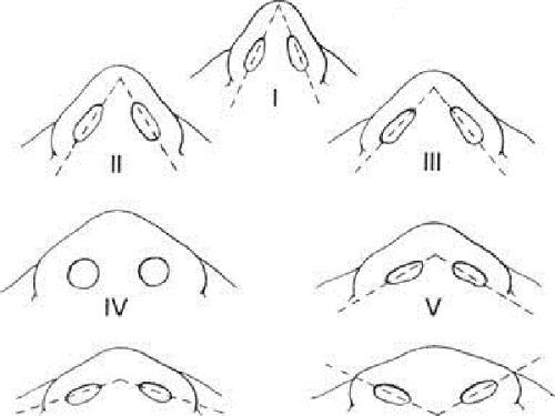 قاعده و سطح تحتانی بینی