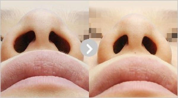 کوچککردن سوراخ بینی