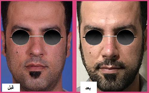 عمل بینی مردان