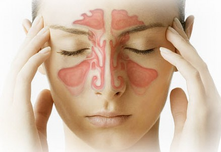 symptoms-of-sinus-438x300