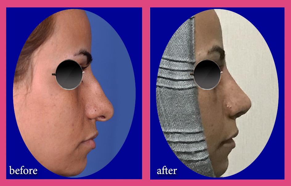 بینی گوشتی با افتادگی قابل توجه