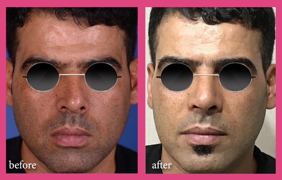 بینی گوشتی ملایم باکجی قابل توجه
