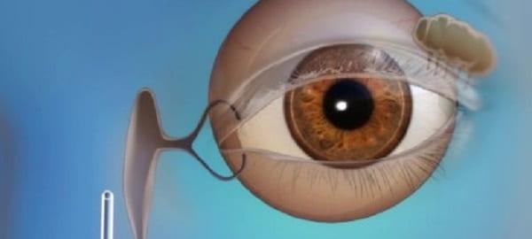 جراحی اندوسکوپیک مجرای اشکی